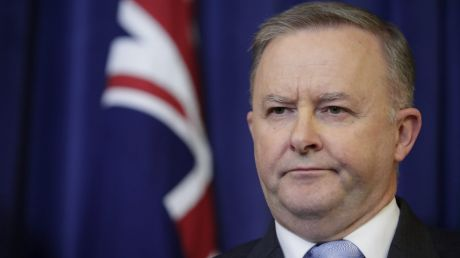 """Opposition Leader Anthony Albanese has banned calling opponents """"liars""""."""