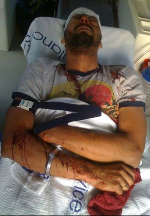 Racist attack ... Indian student Sukhraj Singh, 28, was in a coma for 15 days after being brutally bashed.
