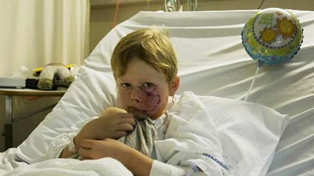 Attacked while sitting out the front of his house with friends... Daniel Breen, 6, at Liverpool Hospital.