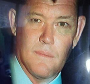 James Packer, sporting a black eye, being driven from his Bondi home.
