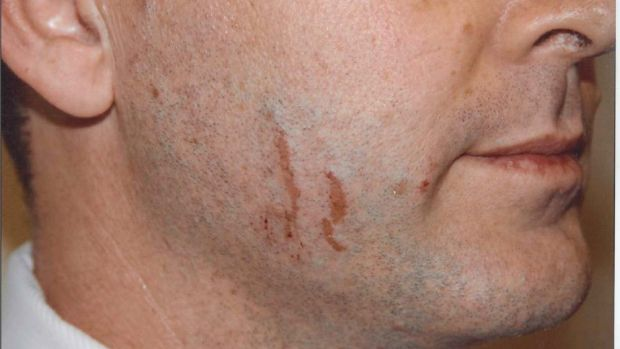 Police photographs of marks on Gerard Baden-Clay's face.