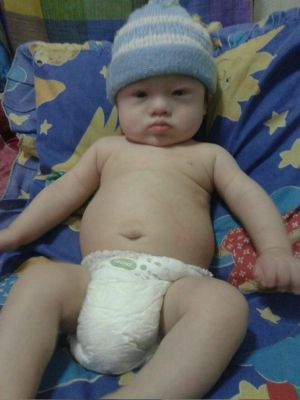 Gammy, who was abandoned in Thailand by his Australian parents, has Down's Syndrome.